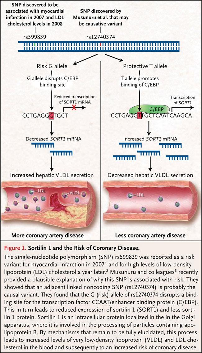 Sortilina 1 y el riesgo de enfermedad coronaria